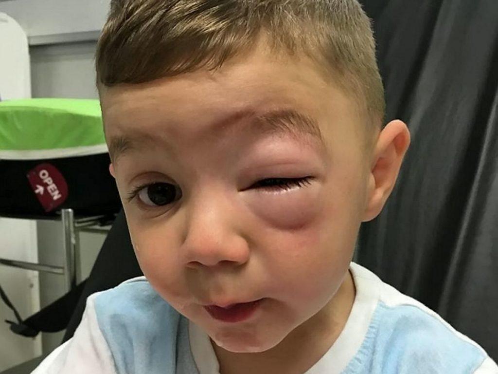 آلرژی به پسته